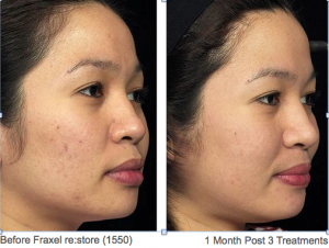 Acne Scarring Before & After